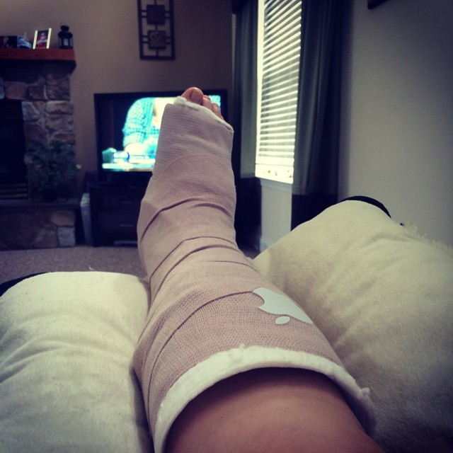 Ankle surgery recovery
